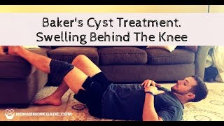 Bakers Cyst Treatment Video