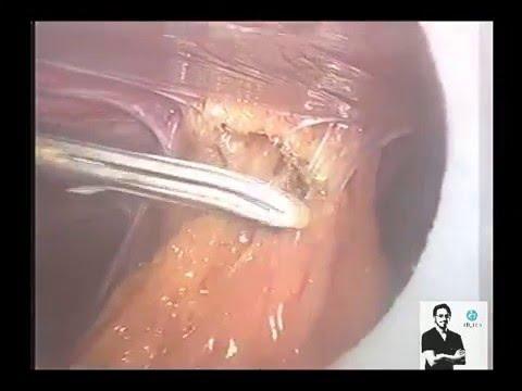 Laparoscopy For Severe Pelvic Adhesions Adhesiolysis Endometriosis Dr Wael Elbanna