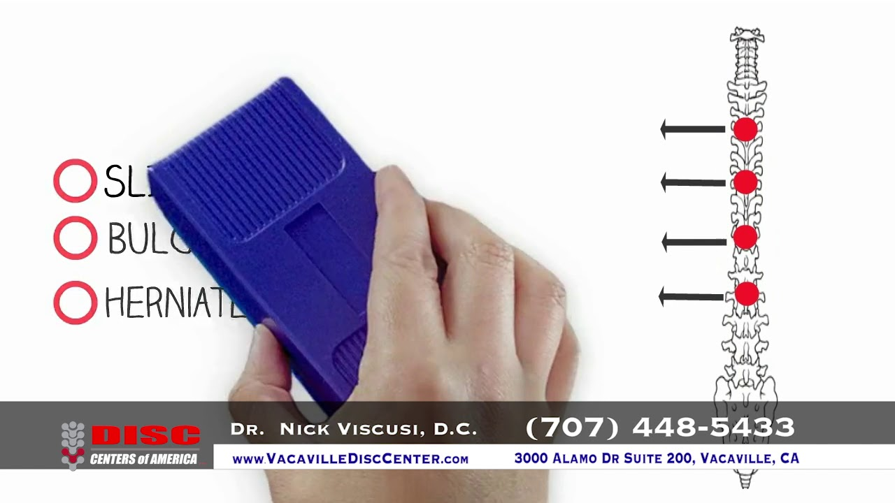 Spinal Decompression Vacaville, CA - Vacaville Disc Center