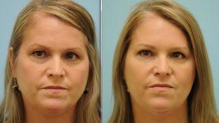 Upper Blepharoplasty, Facial Fillers, Botox, & Botox Jaw Slimming Testimonial