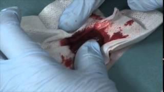 Une nano-colle pour réparer les organes