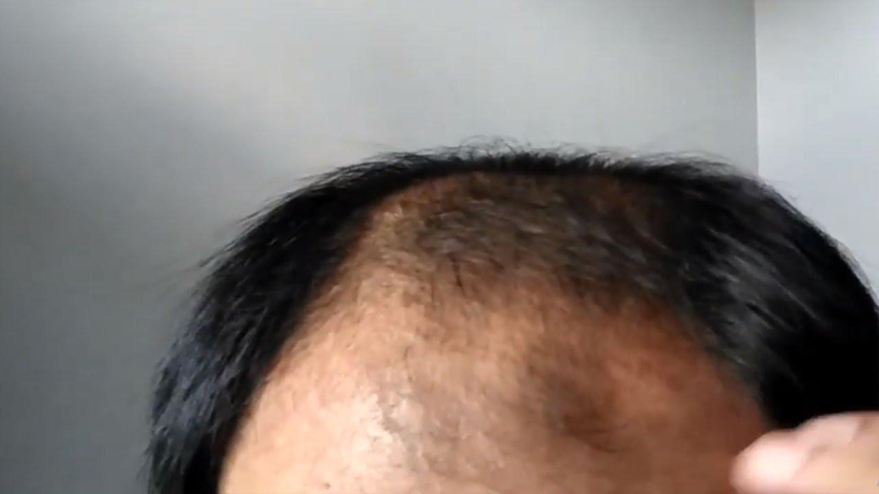 Proses Menumbuhkan Rambut Dengan Revita Dnc N Tanpa Finasteride Dan Minoxidil Ke 17hari Youtube