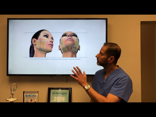 Double Chin/Neck Improvement - Difference Between Ultherapy, Kybella, Liposuction and Necklift