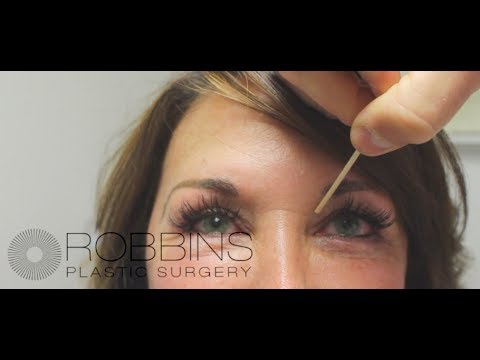 BLEPHAROPLASTY (EYELID) SURGERY- Award-Winning Nashville Plastic Surgeon Dr. Chad Robbins