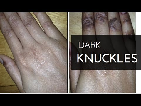 Dark Knuckles: How I Got Rid of Them For Good!