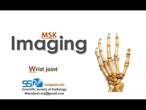 Imaging of Wrist joint - Prof. Dr. Mamdouh Mahfouz (In Arabic)