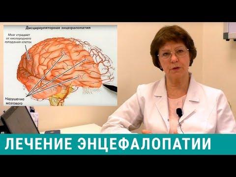 Энцефалопатия - лечение головного мозга, симптомы энцефалопатии