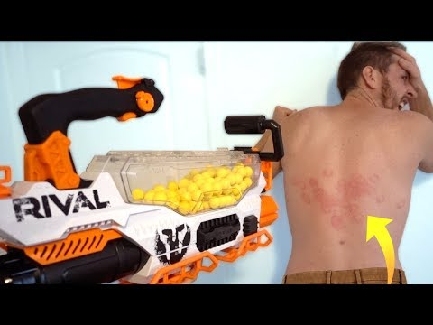 MOST PAINFUL NERF SHOT! (New Rival!)