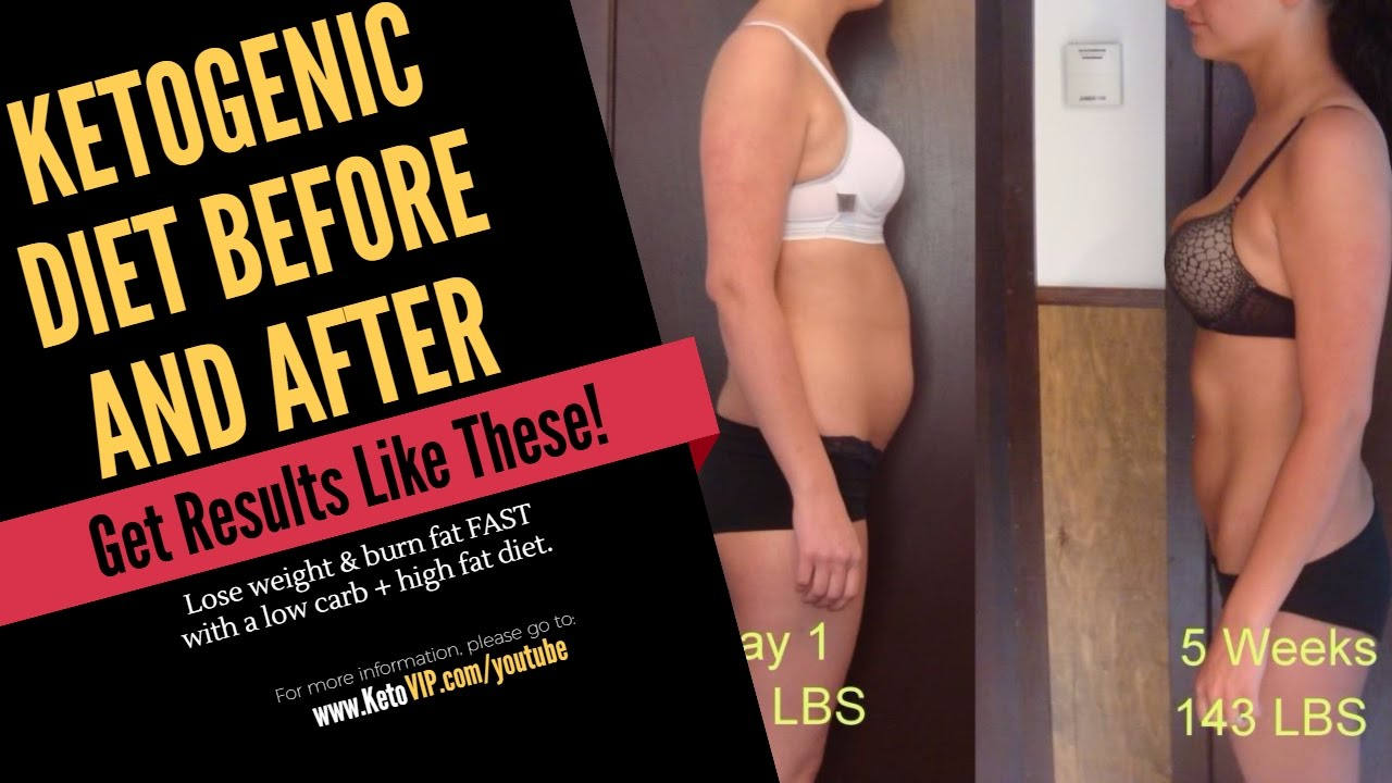 Ketogenic Diet Before And After - KetoVIP.com - YouTube