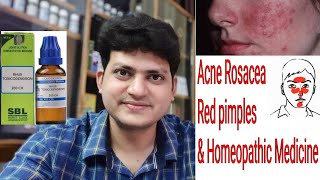 Acne Rosacea ! Red Pimples ! Homeopathic medicine for Rosacea ?? explain !