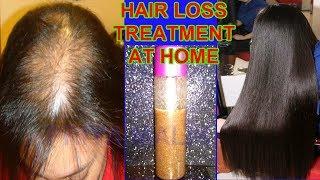HAIR LOSS TREATMENT~ Grow Hair Fast, Thick Hair, Stop Hair Fall, Hair loss ,Dandruff || Priya Malik