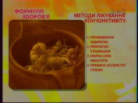Конъюнктивит - симптомы, лечение, профилактика, причины
