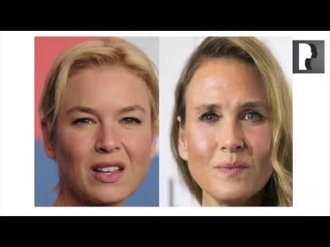 Top Cosmetic Surgeon Discusses Renée Zellweger Plastic Surgery Rumors