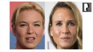 Top Cosmetic Surgeon Discusses Renée Zellweger Plastic Surgery Rumors