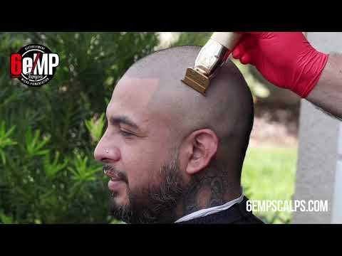 Scalp Micropigmentation Bald Fade