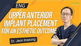 [ENG] Upper Anterior Implant Placement for an Esthetic Outcome [#Dentalbean]