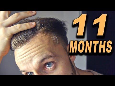 FUE Hair Transplant 11 Months (post OP) Istanbul, Turkey
