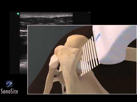 Внутрисуставные инъекции в плечевой сустав видео боль в районе локтевого сустава