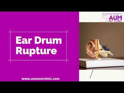 ear-drum-rupture|-ear-drum-rupture-treatment-in-mumbai|-best-ent-specialist|-dr-shailesh-pandey