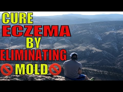 How to cure eczema by eliminating mold