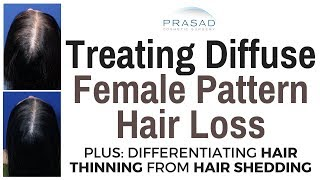 How Diffuse Female Pattern Hair Loss can be Treated, and Differentiating Hair Thinning from Shedding