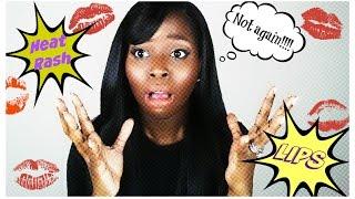 Heat Rash Lips!!! How to get rid of it!