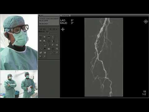 LIVE PERIPHERAL CASES Telecast from Park Hospital, Leipzig, Germany - Andrej Schmidt, MD