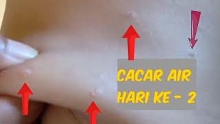 Kamus Penyakit C: Cacar Air.