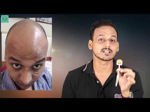 Derma Roller For Hair Regrowth | HAIR TRANSPLANT IN INDIA (2018)|
