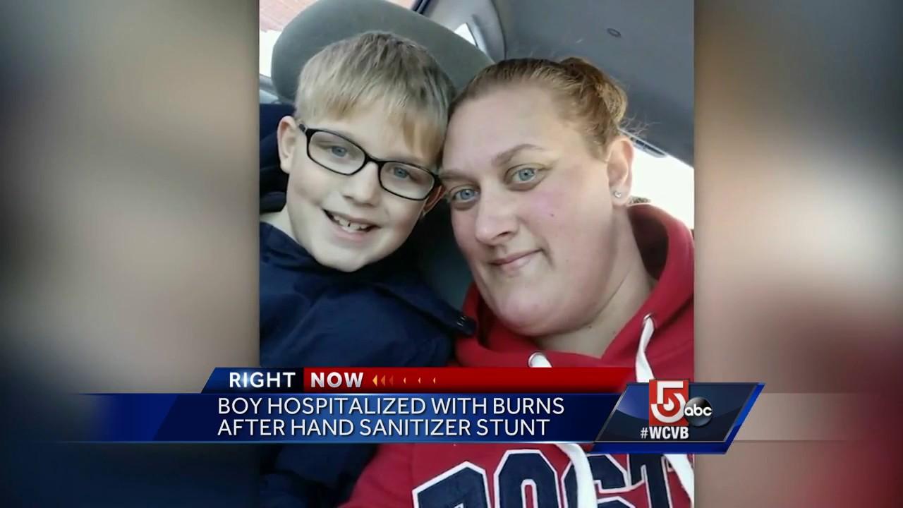 Boy Hospitalized With Burns After Hand Sanitizer Stunt Youtube