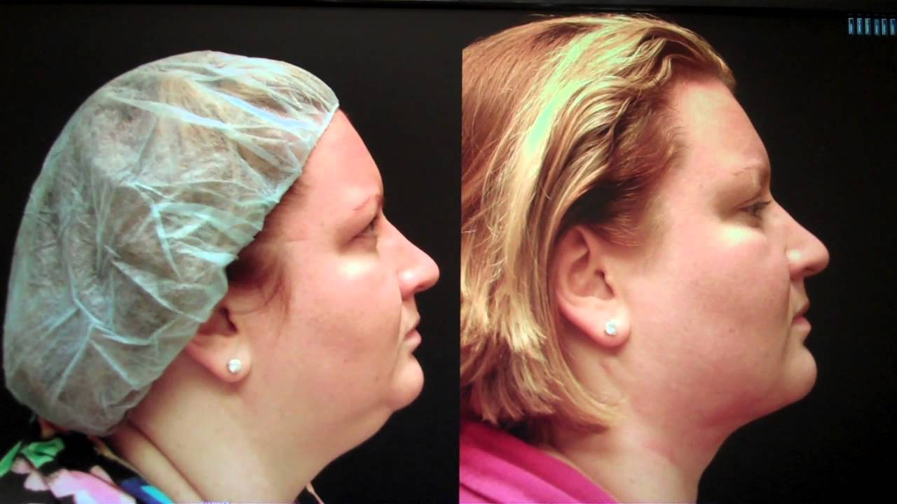 Chin Liposuction Before And After Pictures Youtube