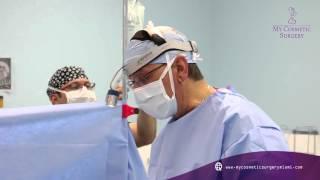 Implantes de senos en My Cosmetic Surgery Miami