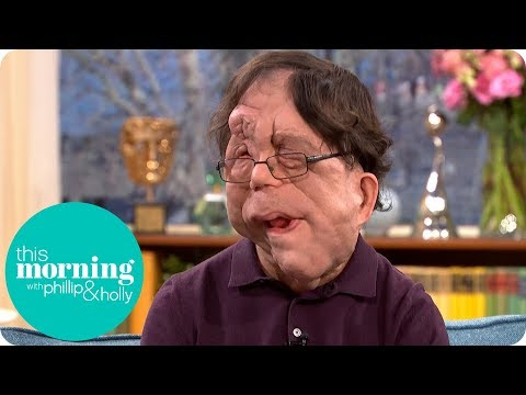 Adam Pearson on Changing Perceptions of Disfigurement | This Morning