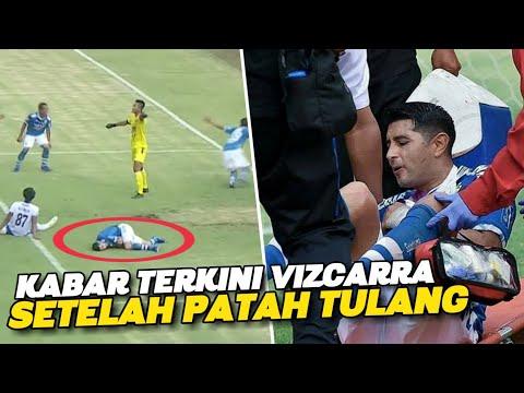 """JADI """"TUMBAL"""" !! Terbaru Kabar Esteban Vizcarra Setelah Insiden Patah Tulang di Laga Persib vs Arema"""