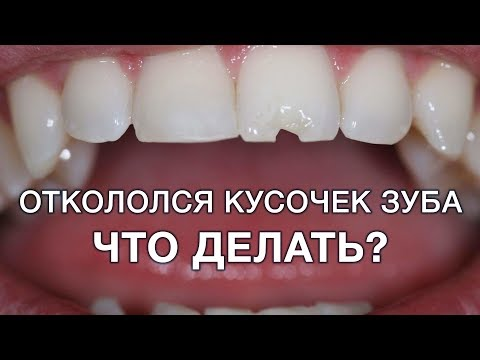 Если откололся зуб и болит