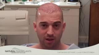 Hair Doctor in Boca Raton Florida | Boca Raton Hair Clinic