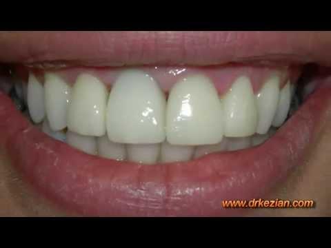 Dental Implants in Los Angeles -s