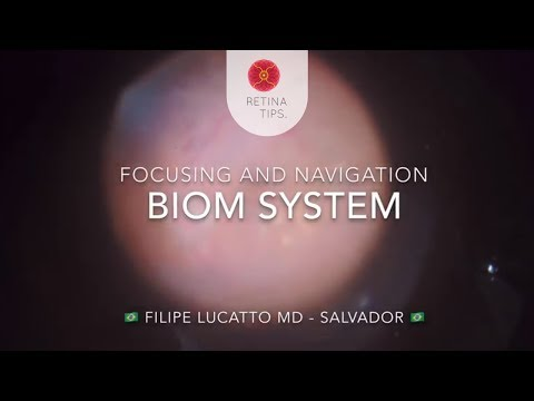 Improving Visualization Using BIOM System In Vitreoretinal Surgery