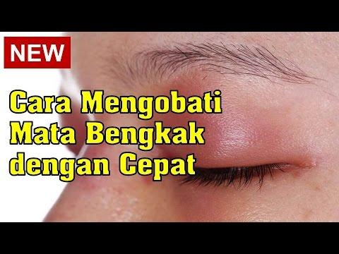 Mata Merah Sebelah Kanan Setelah Bangun Tidur - Terkait Mata