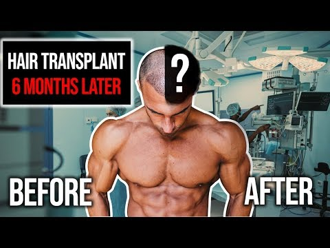 hair-transplant-results-after-6-months-|-before-&-after
