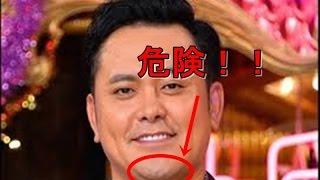 有田哲平のアゴはヤバイ!専門家が危険性を指摘 2日放送の「友だち+プ...