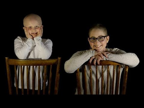 Mom with breast cancer and daughter with alopecia show us bald is beautiful