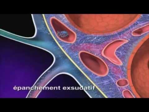 hqdefault - Œdème pulmonaire, œdème aigu du poumon , œdème aigu pulmonaire ou eau dans les poumons