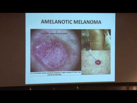 Not Your Typical Melanoma: Clinical Clues and Pitfalls