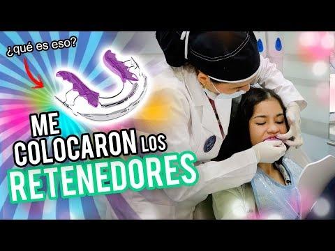 MI TRATAMIENTO DE ODONTOLOGIA 2 - ME COLOCARON LOS RETENEDORES Y QUEDE HABLANDO RARO