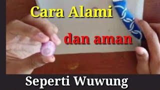 JANGAN DIPECAH SENDIRI Timbilan/Bintitan Pada Mata Anak,  Apa karena Ngintip?- dr. Rony Tamba , SpA.