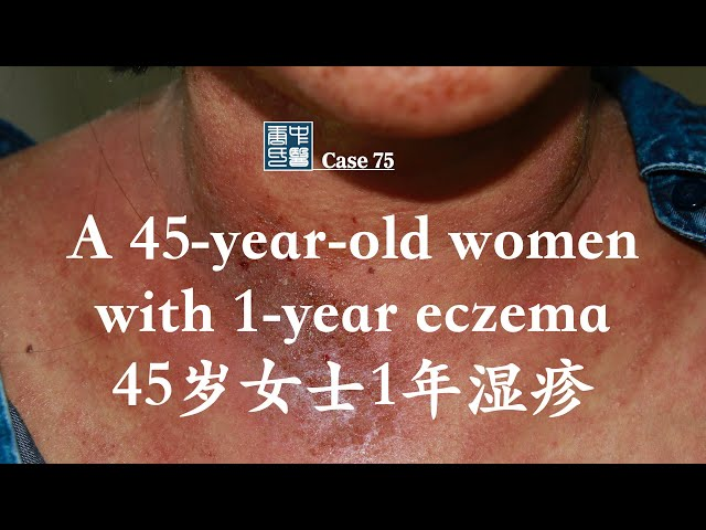 A 45-year-old women with 1-year eczema 45岁女士1年湿疹