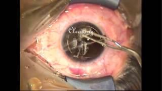 Bladeless (Femtosecond Laser Assisted) LASIK Surgery