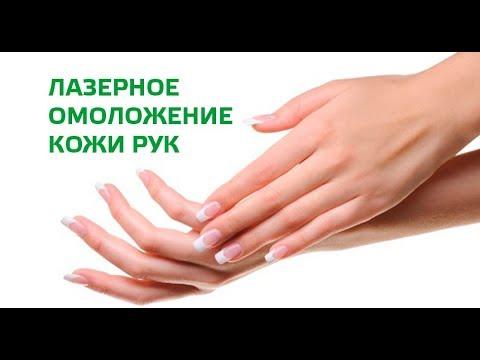 Лазерные методы омоложение кожи рук