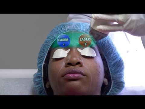 Brown and Black Skin Laser Treatment